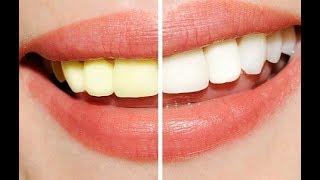 وصفة معجزة في تبييض الأسنان و إزالة الإصفرار الفرق واضح من أول تجربة !