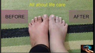 Lighten & Brighten Dark Tanned Feet in 10 Minutes Only | Pedicure to Whiten Dark Feet