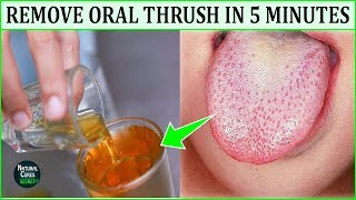 How to Get Rid of Oral Thrush Naturally In 5 Minutes - Oral Thrush Home Remedies