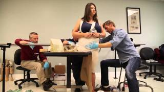 Hip disartic amputee receives better functioning with new prosthetic