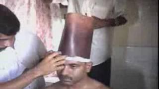Sirovasti Ayurvedic Treatment - Majlis Ayurvedic Health Park, Thrissur-Kerala-India.