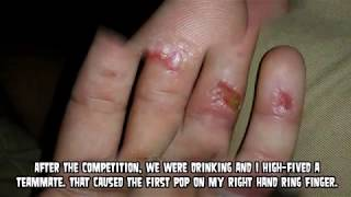 World's Worst Blisters, Burns and Cysts - Rope Burn Story