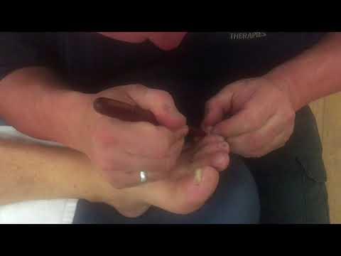 Xxx Mp4 Foot Massage With Reflexology Tools Deep Foot Massage On Tim Part 3 3gp Sex