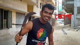 সামসু কেন ডাক্তার || Samsu Keno Doctor || Bangla Funny Video 2017