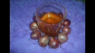 মাত্র ৭ দিনে চুল পরা বন্ধ করে নতুন চুল গজাবে এই পিয়াজ  তেল/How to make onion hair oil at home