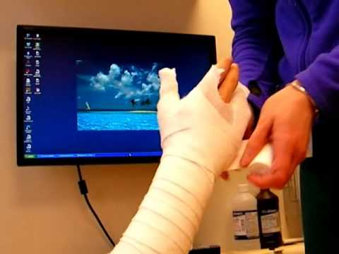How to Make a Cast for a Hand Fracture Nicky Leung MD