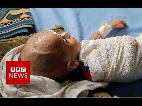 Xxx Mp4 How Children Are Starving In Yemen S War BBC News 3gp Sex