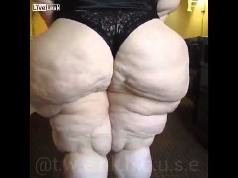 WHO WOULD YOU RATHER? = a fat sexy woman or a woman with no teeth =