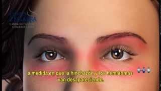 Cirugía Estética de Párpados (Blefaroplastía) - Parte 1 | Clínica Zegarra