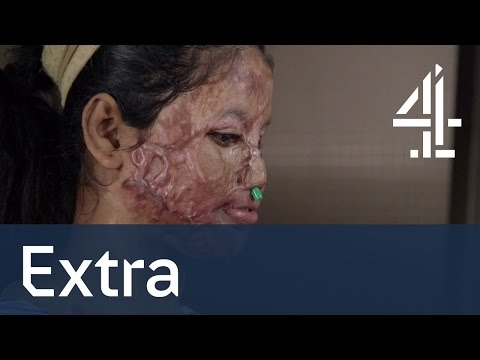 Acid Attack The Girl Who Lost Her Face Unreported Wold Shorts