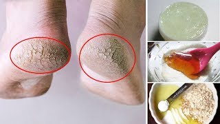 How to Get Rid of Dry Feet and Cracked Heels Fast