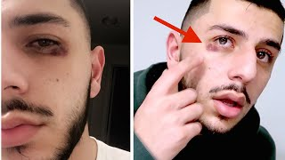 WHAT HAPPENED TO MY EYE?! *The TRUTH*