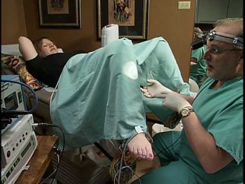 Gynecare Thermachoice® Uterine Balloon Therapy System
