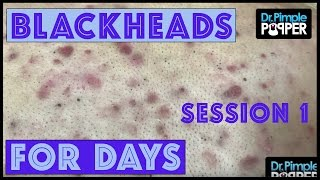 Blackheads for Dayzzzz with Dr Pimple Popper: Session 1