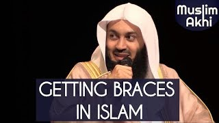 Are We Allowed To Put Braces in Islam?   Ask Mufti Menk