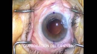 Cirugía de catarata con Lente intraocular torica