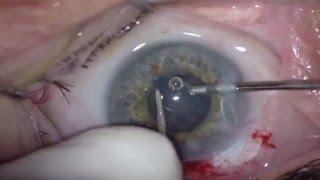 Cirugia de Catarata en Pupila pequeña HD