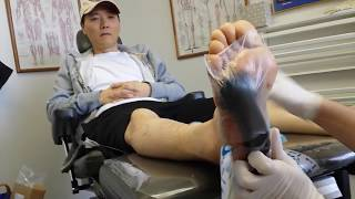 Wound VAC dressing change of a diabetic foot ulcer in Irvine, CA - Orange County
