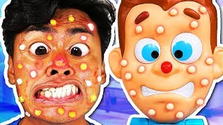 PIMPLE PETE IN REAL LIFE!