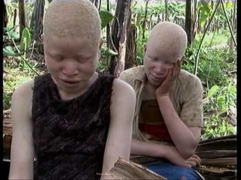 Xxx Mp4 Deadly Hunt Albinos In Tanzania 3gp Sex
