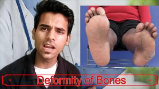 Indian Army Medical Procedure   Diseases for Rejection   Check up Doctors