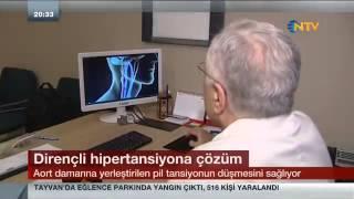 """""""Pille Hipertansiyon Düşürme Yöntemi"""", NTV"""