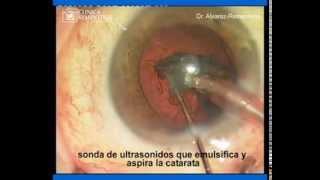 Cirugia de catarata paso a paso | Dr. Alvarez-Rementeria | Clinica Rementeria