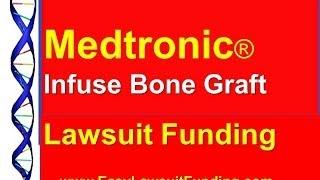 Medtronic Bone Graft Lawsuit Funding -- Pre Settlement Lawsuit Loans
