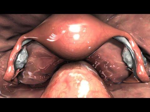Laparoscopia Pélvica Diagnóstica