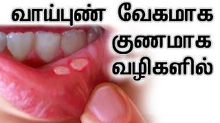 வாய் புண் வேகமாக குணமாக வழிகளில்   Home Remedy For Mouth Ulcer In Tamil