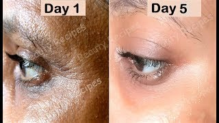 in 5 Days Remove Under Eye WRINKLES, Under Eye Bags, Puffy eyes & Dark Circles - Green Tea Eye Mask