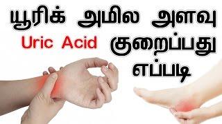 யூரிக் அமில அளவு குறைப்பது எப்படி   How To Reduce High Uric Acid Level IN TAMIL