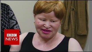Tanzania albino attacks: