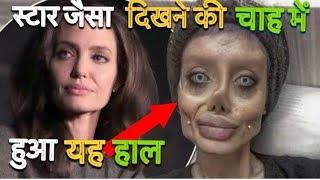 ✅ 50 सर्जरी के बाद हुआ कुछ ऐसा कि सबके उड़ गए होश \Sahar Tabar Undergoes 50 Suregeris To Be Angelina