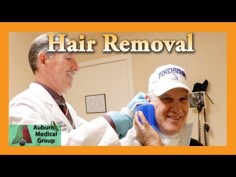 Let the Hair Out Ear Foreign Body Removal Auburn Medical Group