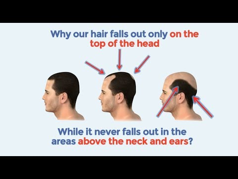 Best Hair loss treatment | How to stop hair loss naturally and baldness cure 2018