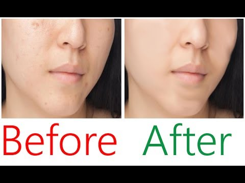 How to remove Black scars and Large  holes on Face permanently