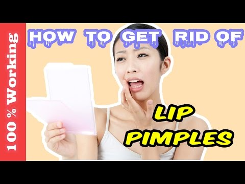 How To Get Rid Of Pimples On Lips Overnight - Fast - Home Remedies - Blackheads - Acne - Remove