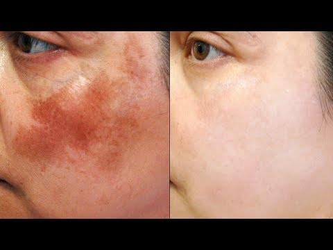 Remove Dark Spots, Pigmentation & Acne Scars In Just 3 Days | Magical Face Mask | 100% Works