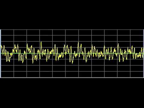 Chronic Fatigue Syndrome - Rife Frequencies