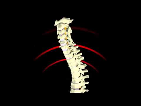 Copy of Spine Posture and Vibration   Adverse Health Effects