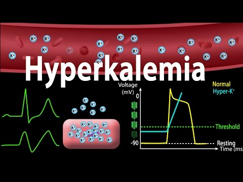 Hyperkalemia: Causes, Effects on the Heart, Pathophysiology, Treatment, Animation.