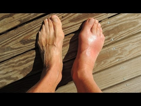 How to Treat Gout Naturally at Home