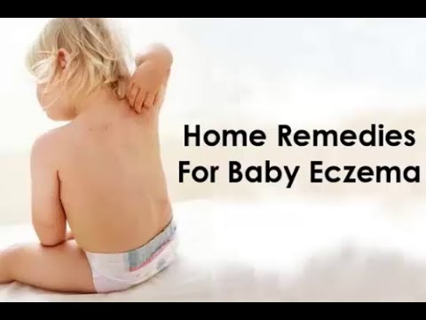 How to Get Rid of Eczema : Home Remedies For Baby Eczema