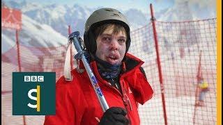 Skiing helps me take on autism - BBC Stories