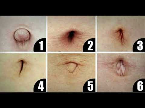 YOUR BELLY BUTTON CAN REVEAL THE DISEASE YOU'RE SUFFERING FROM!