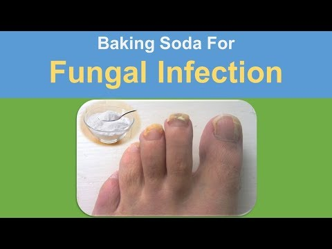 baking soda for fungal infection - Baking Soda with Epsom Salt