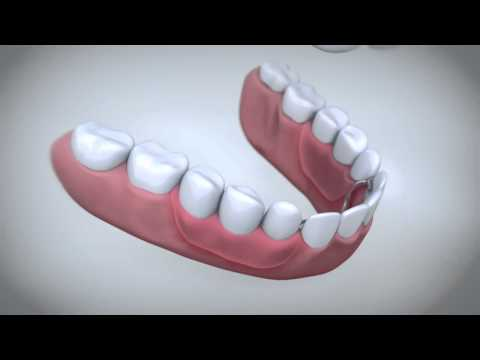 Sore gums from dentures