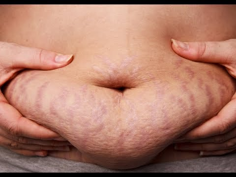 How to Get Rid of Stretch Marks After Pregnancy?