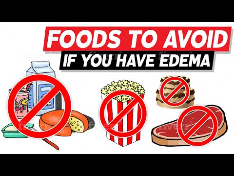 Foods to Avoid If You Have Edema